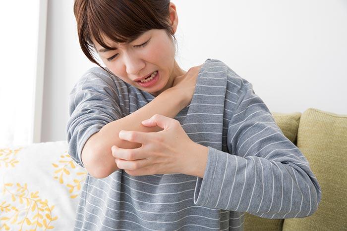 妊娠中の蕁麻疹のイメージ