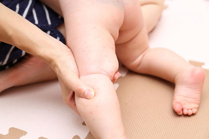 赤ちゃんアトピー イメージ
