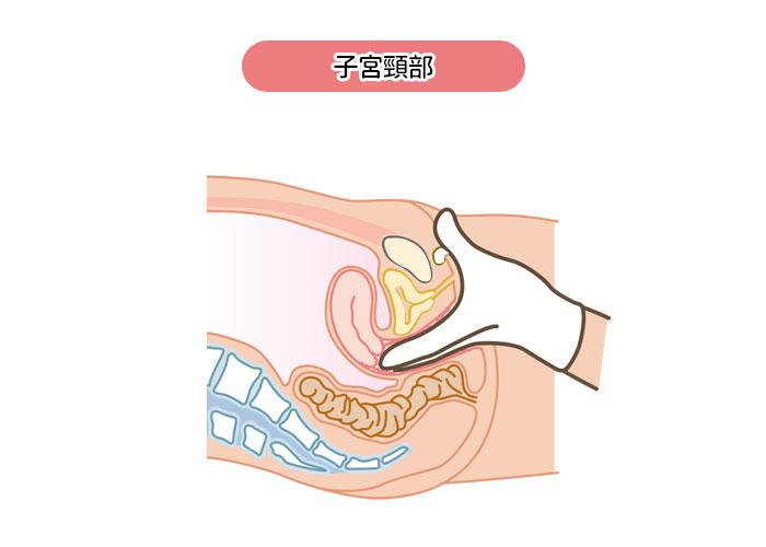 内診(子宮頸部)イメージ