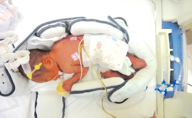 NICUの保育器の中で過ごす赤ちゃん