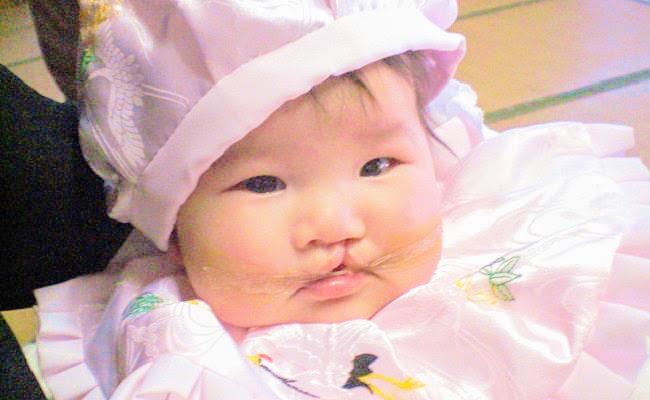 口唇口蓋裂の赤ちゃんの写真