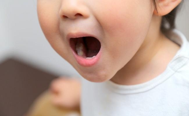【体験談】2歳で虫歯ができてしまった!虫歯の原因とその後の対策
