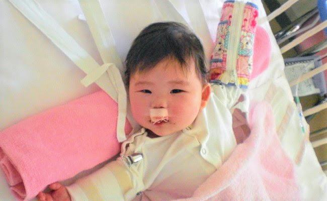 口唇口蓋裂の赤ちゃん