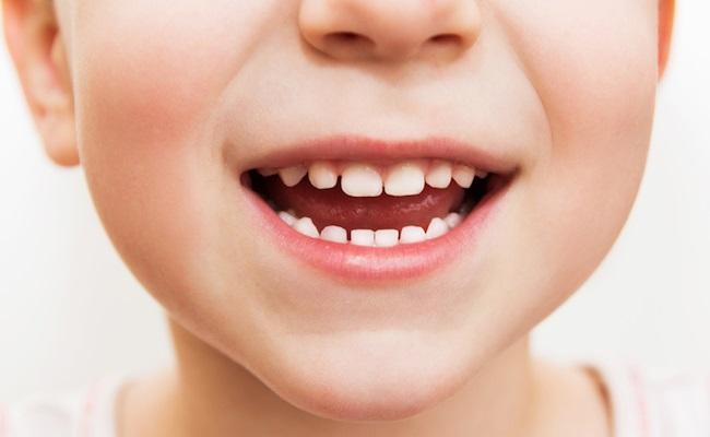 子供の歯並びのイメージ