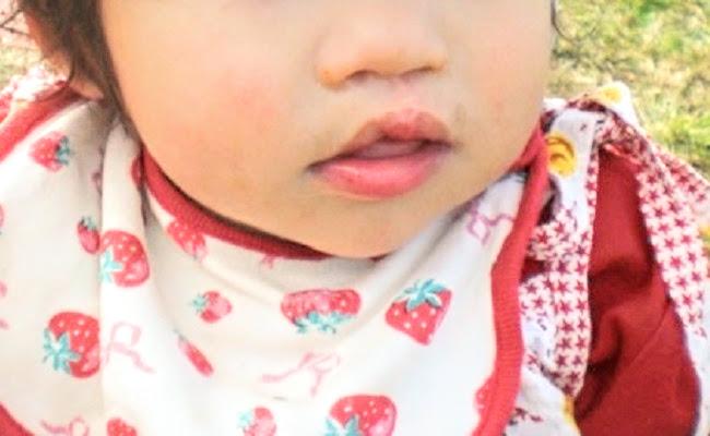 口唇口蓋裂の娘さん(6歳)