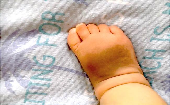 足の甲の蒙古斑のイメージ