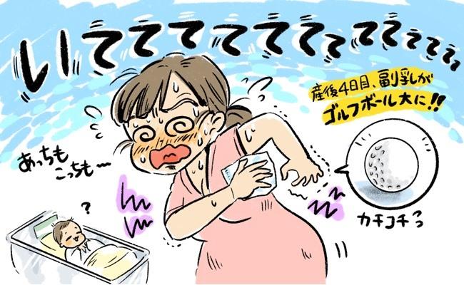 副乳のイメージ