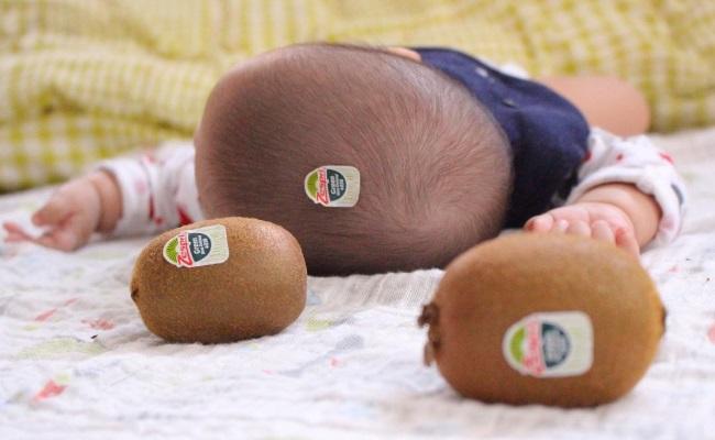 赤ちゃんの頭がキウイにそっくり/キウイ頭(写真)