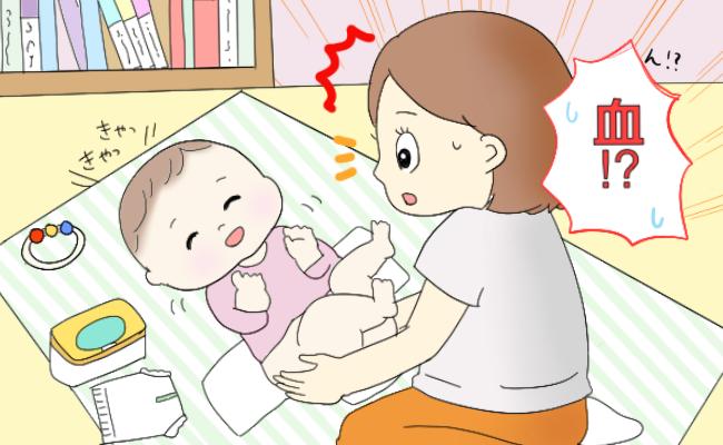 新生児月経のイメージ