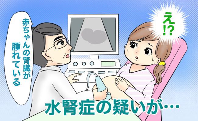 ショック!!「おなかの中の赤ちゃんの腎臓が腫れている」と言われ…