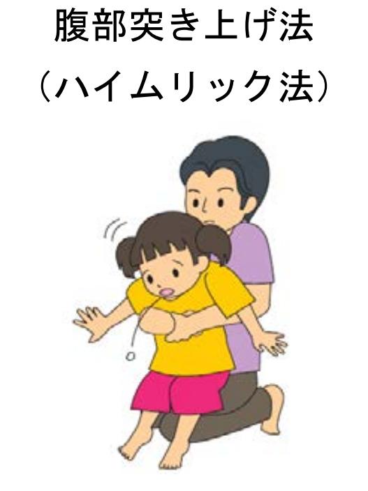 ハイムリック法(腹部突き上げ法)