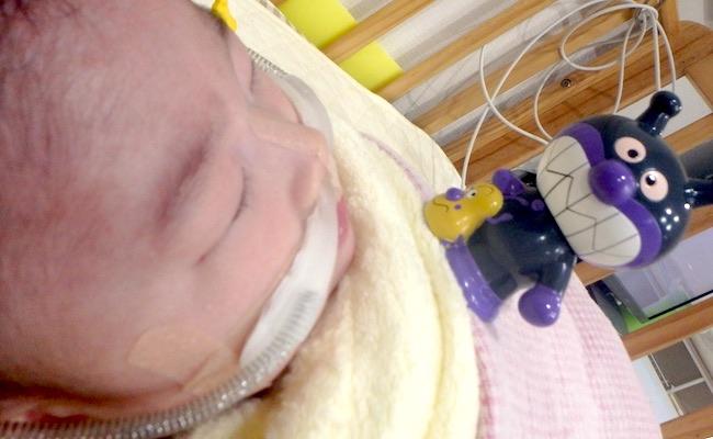 3人目でまさかの先天異常…。横隔膜ヘルニアで生まれた息子