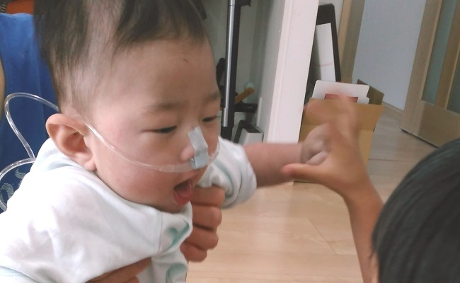 管をつけた赤ちゃん