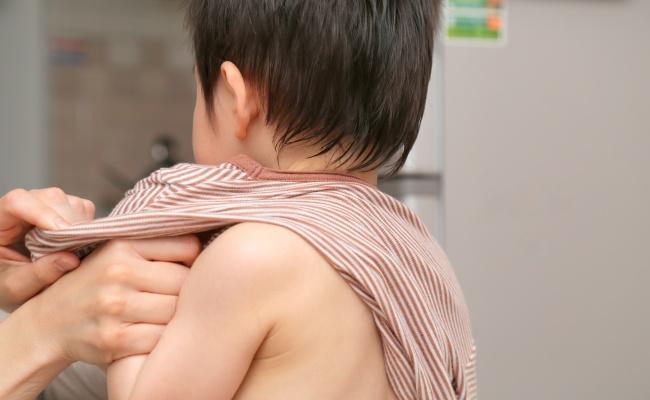 子ども 夏の肌トラブル
