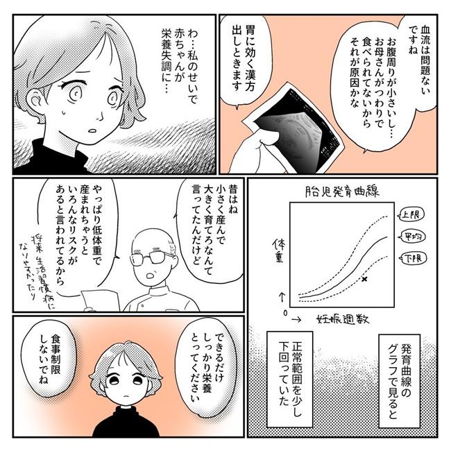 出産体験談2