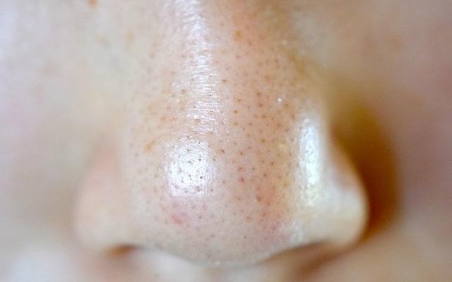 小鼻の毛穴 黒ずみ2