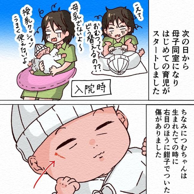 無痛分娩で産みました14_1