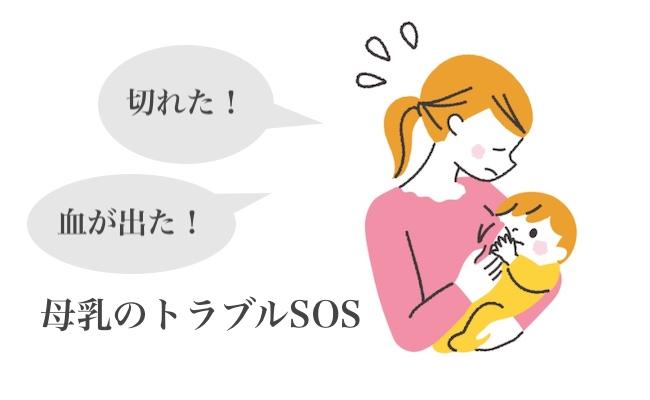 母乳のトラブルに悩むママのイメージ