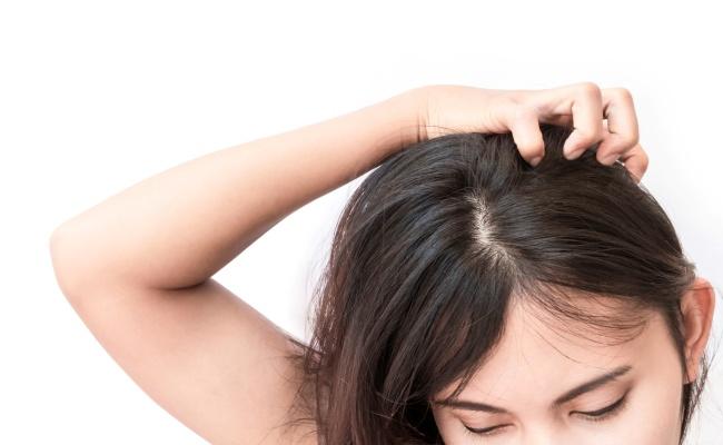 女性 頭皮