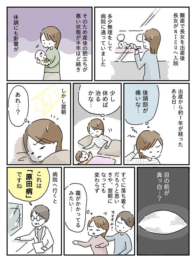 原田病の体験談