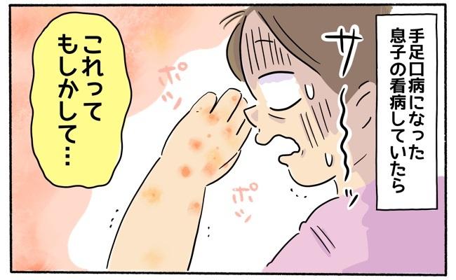 手足口病の感染