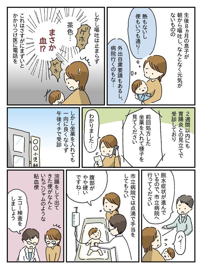 生後8か月、嘔吐が止まらず…検査の件おなかの中で小腸が大変なことに