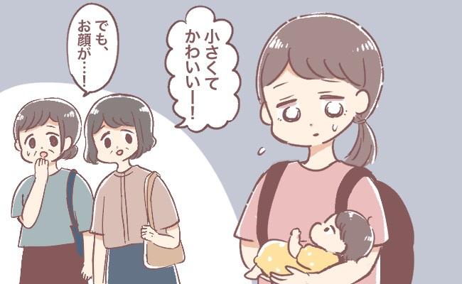 乳児湿疹のひどい赤ちゃん