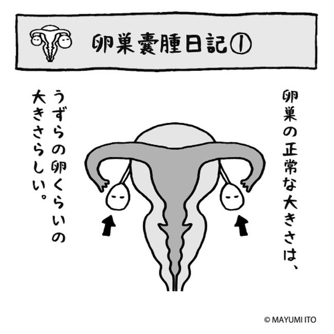 卵巣嚢腫日記。第1話