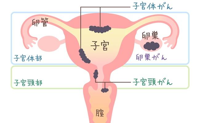 卵巣がん3